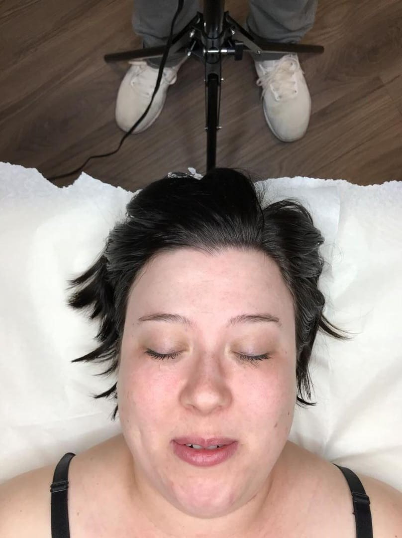 microblading before pic2